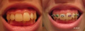 Зубы с брекетами